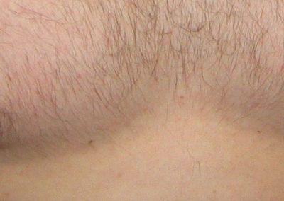 Male areola