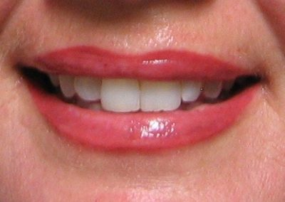 Lips -PMU