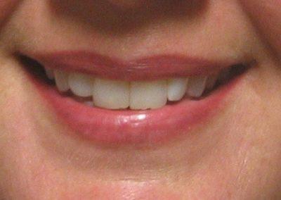 Lips - PMU