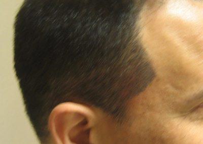 Ken Isner-Scalp pigmentation-sibeburn-healed