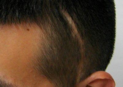 Scalp Micro-Pigmentation